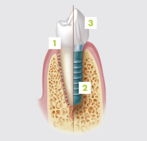 1. natural tooth 2. dental implant 3.crown