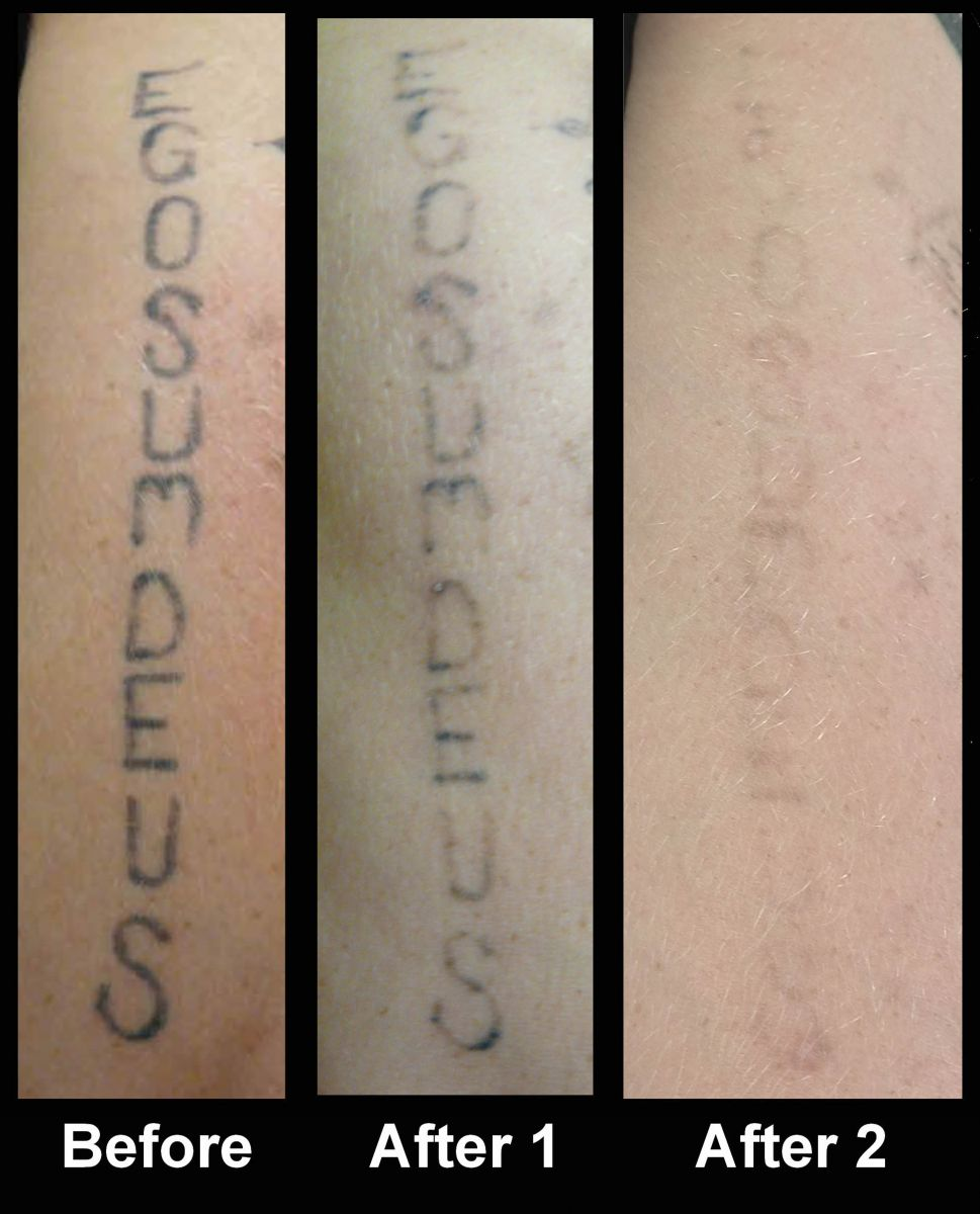 Laser tattoo removal for How to lighten a tattoo with white ink