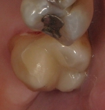 Fillings After Treatment